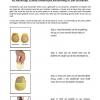 Balettes - minder pijn in bal van de voet bij lopen op hoge hakken